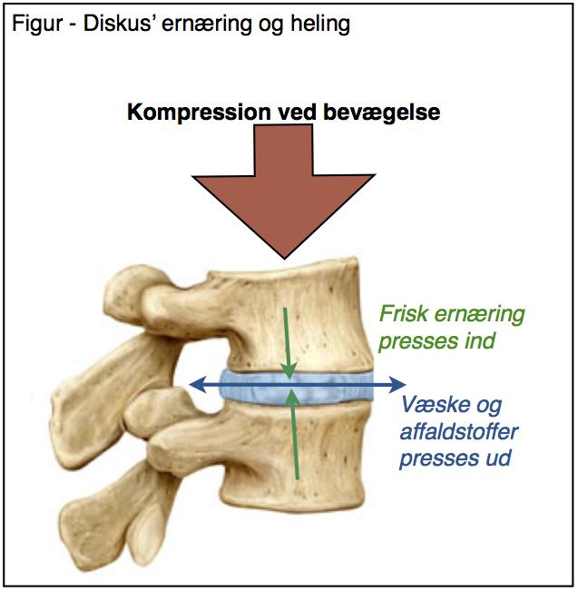 diskusprolaps i ryggen